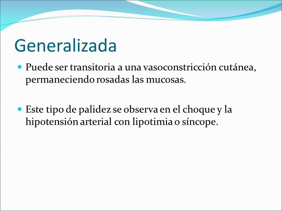 Generalizada Puede ser transitoria a una vasoconstricción cutánea, permaneciendo rosadas las mucosas. Este tipo de palidez se observa en el choque y l