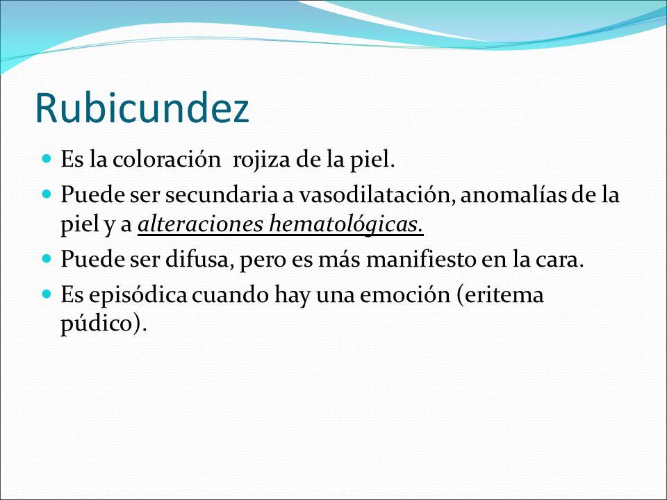 Rubicundez Es la coloración rojiza de la piel. Puede ser secundaria a vasodilatación, anomalías de la piel y a alteraciones hematológicas. Puede ser d
