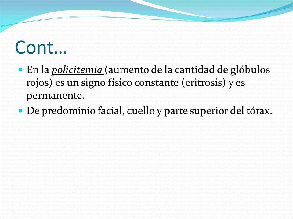 Cont… En la policitemia (aumento de la cantidad de glóbulos rojos) es un signo físico constante (eritrosis) y es permanente. De predominio facial, cue