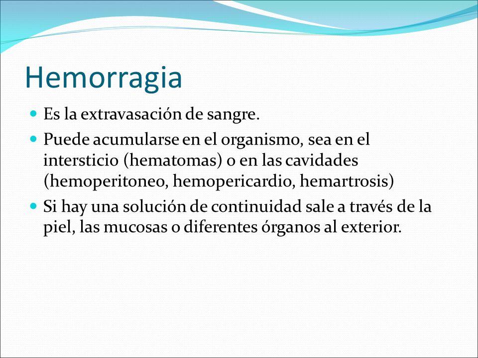 Hemorragia Es la extravasación de sangre. Puede acumularse en el organismo, sea en el intersticio (hematomas) o en las cavidades (hemoperitoneo, hemop
