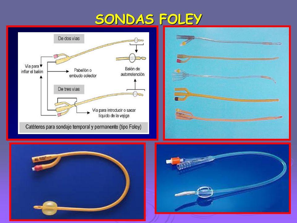 SONDAS FOLEY