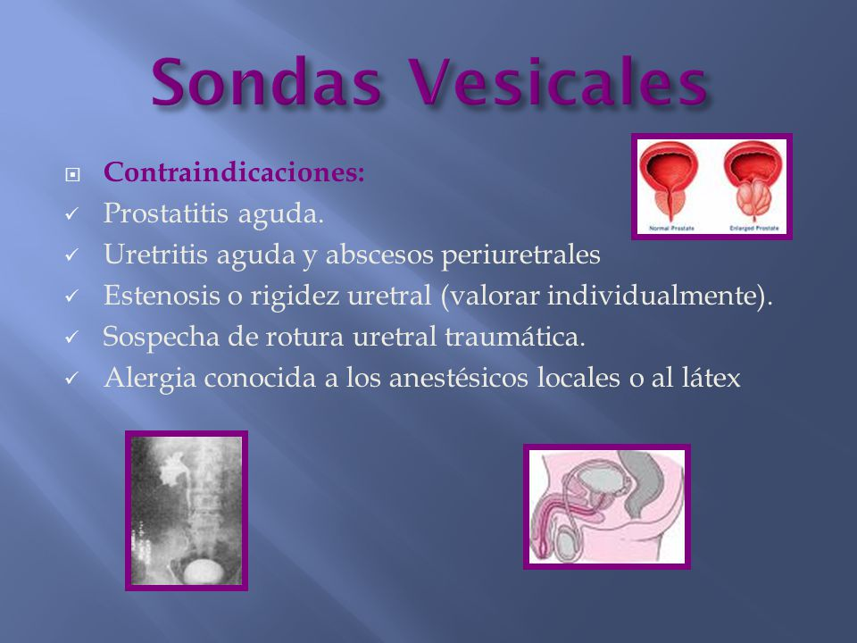  Contraindicaciones: Prostatitis aguda. Uretritis aguda y abscesos periuretrales Estenosis o rigidez uretral (valorar individualmente). Sospecha de r
