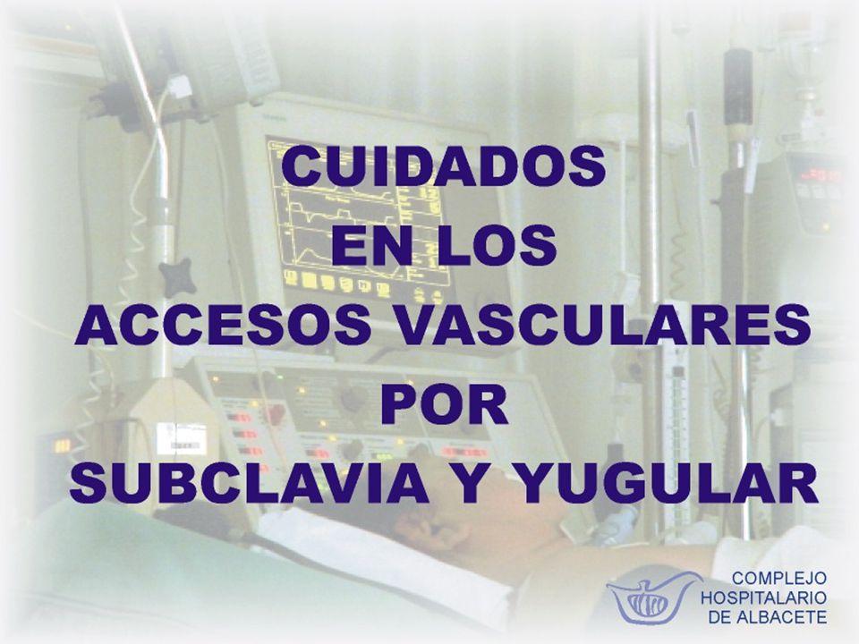 La cateterización venosa con fines terapeúticos concierne a la totalidad del personal de Enfermería del Complejo Hospitalario de Albacete.