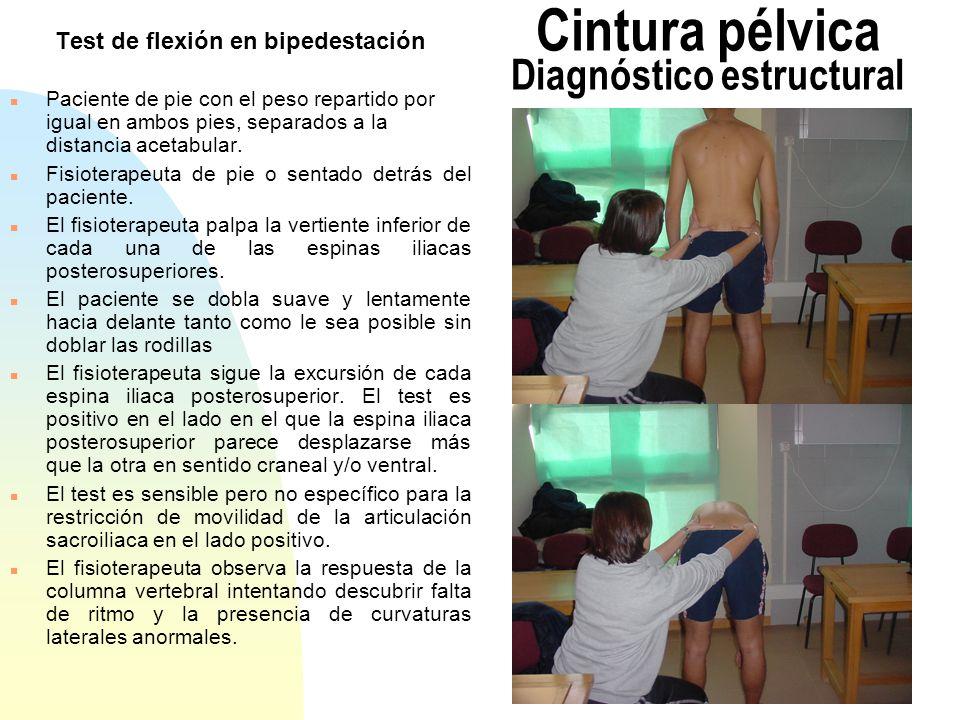 Test de la cigüeña monopodal Test de Gillet (1) n Con el paciente de pie y el fisioterapeuta sentado detrás, el pulgar izquierdo del operador se coloca en la parte más posterior de la espina iliaca posterosuperior izquierda, y el pulgar derecho sobre la línea media del sacro a la misma altura.