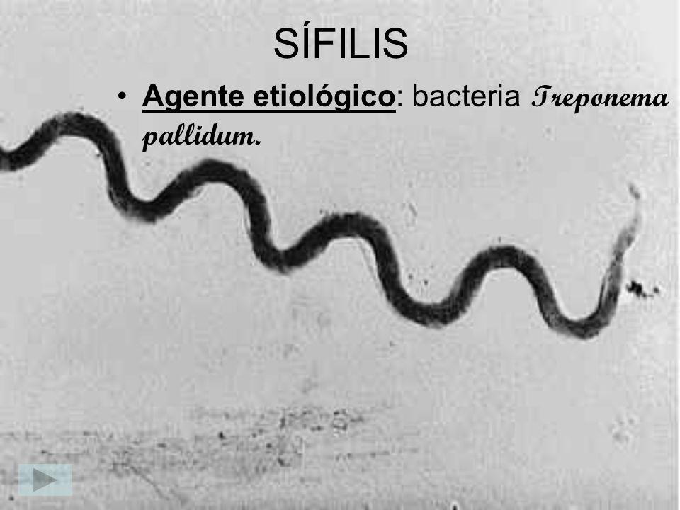 SÍFILIS Agente etiológico: bacteria Treponema pallidum.