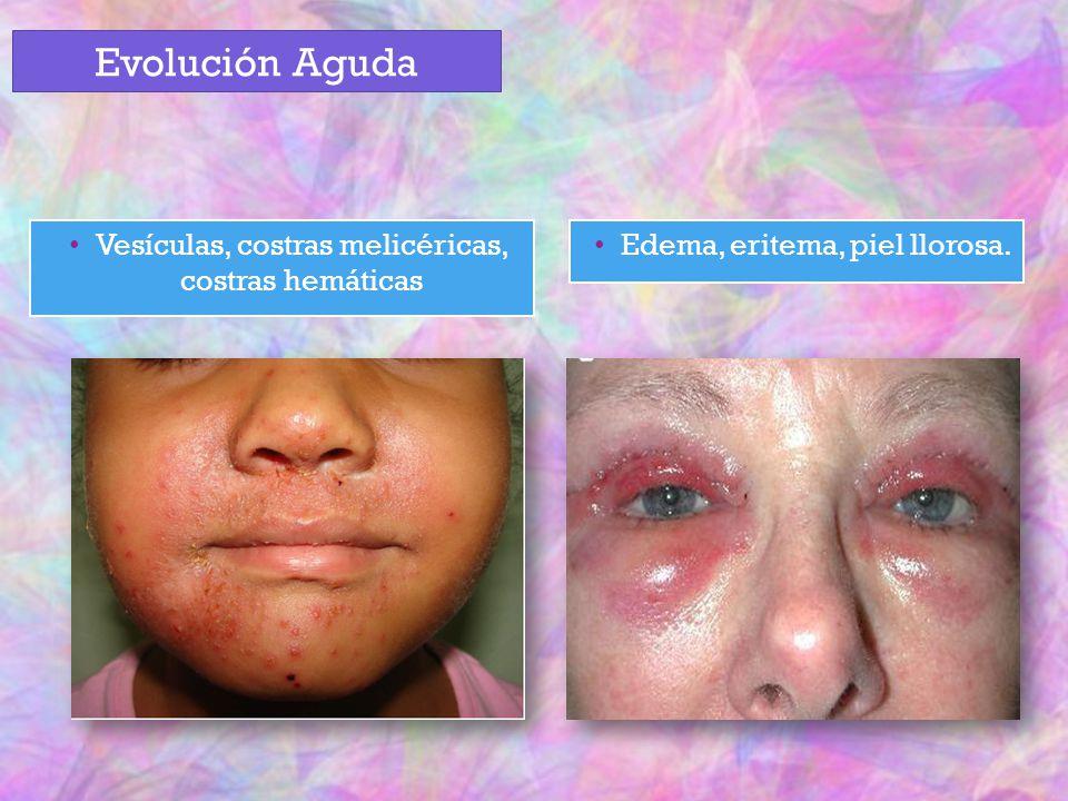 Vesículas, costras melicéricas, costras hemáticas Edema, eritema, piel llorosa. Evolución Aguda