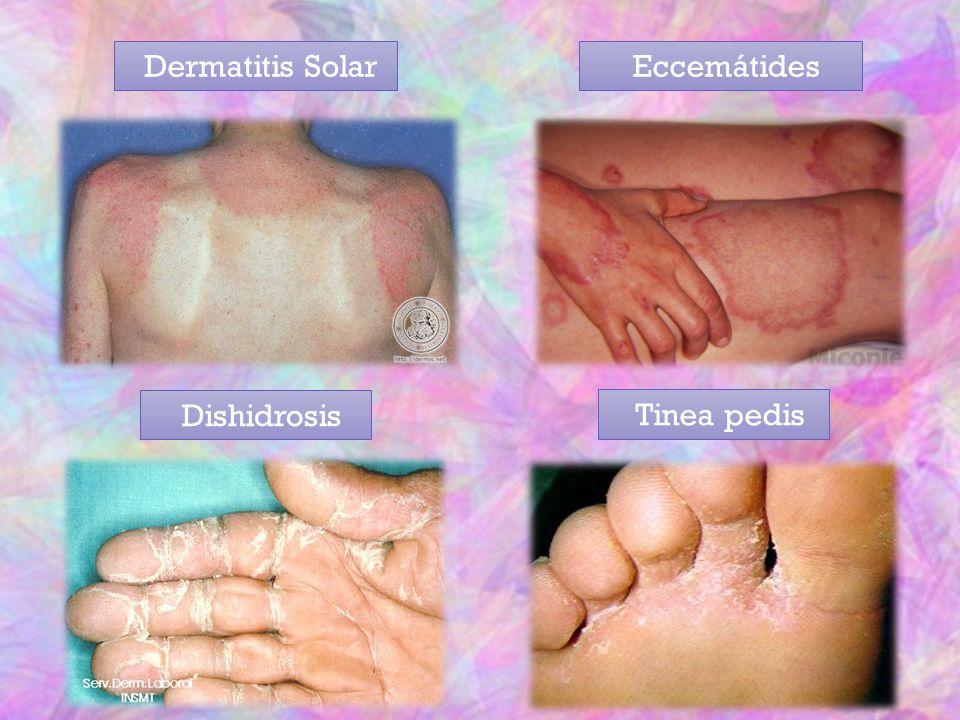 Dermatitis SolarEccemátides Dishidrosis Tinea pedis