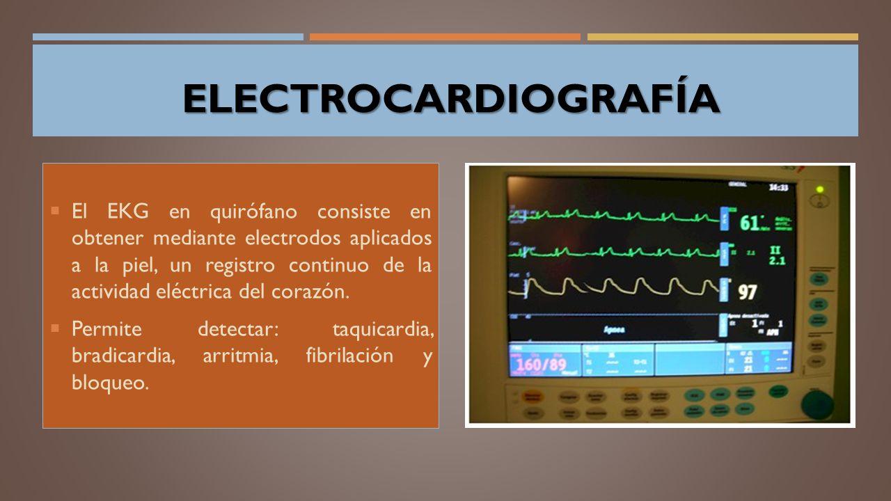 ELECTROCARDIOGRAFÍA ELECTROCARDIOGRAFÍA  El EKG en quirófano consiste en obtener mediante electrodos aplicados a la piel, un registro continuo de la actividad eléctrica del corazón.