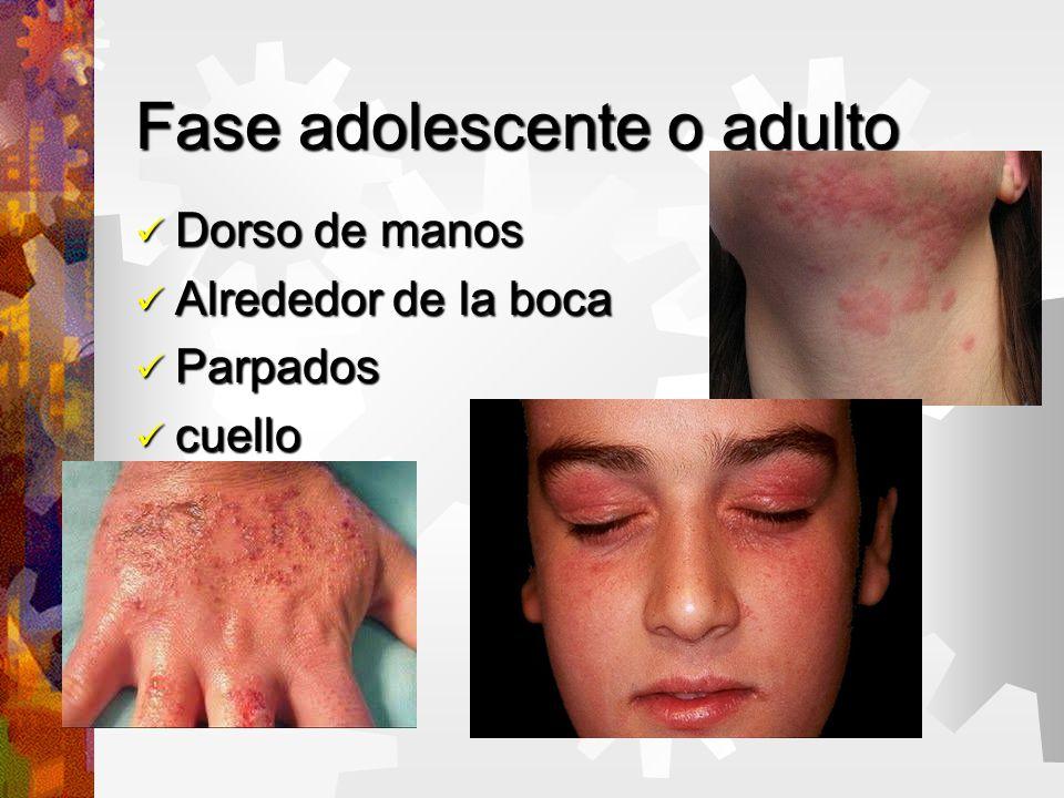 Fase adolescente o adulto Dorso de manos Dorso de manos Alrededor de la boca Alrededor de la boca Parpados Parpados cuello cuello