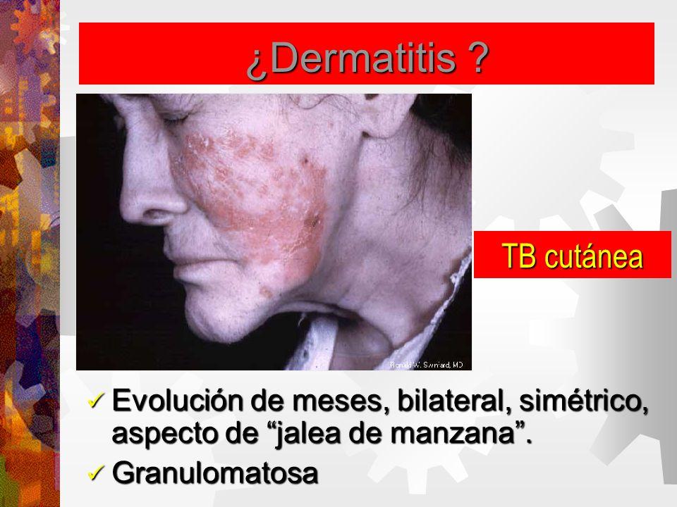 ¿Dermatitis .Evolución de meses, bilateral, simétrico, aspecto de jalea de manzana .