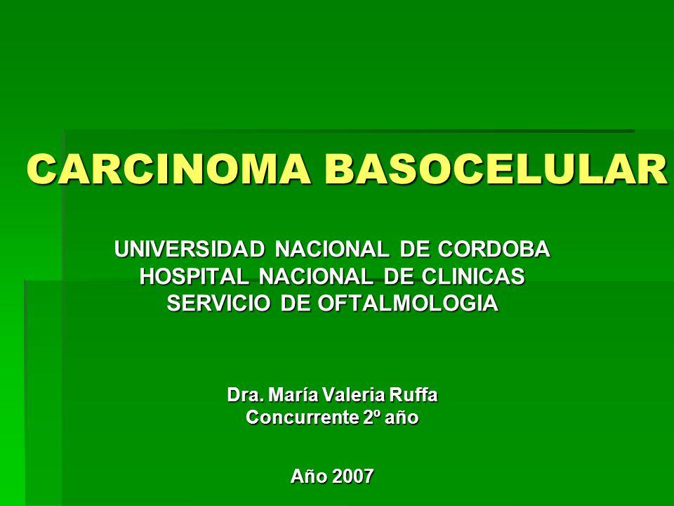 CARCINOMA BASOCELULAR UNIVERSIDAD NACIONAL DE CORDOBA HOSPITAL NACIONAL DE CLINICAS SERVICIO DE OFTALMOLOGIA Dra.