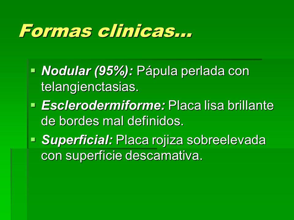 Formas clinicas…  Nodular (95%): Pápula perlada con telangienctasias.  Esclerodermiforme: Placa lisa brillante de bordes mal definidos.  Superficia