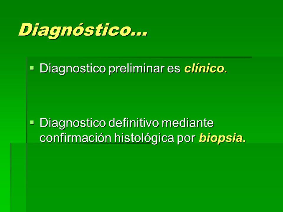 Diagnóstico…  Diagnostico preliminar es clínico.  Diagnostico definitivo mediante confirmación histológica por biopsia.