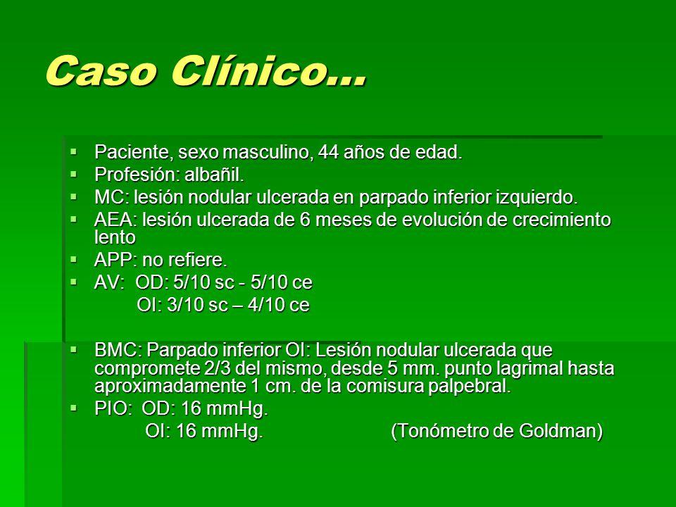 Caso Clínico…  Paciente, sexo masculino, 44 años de edad.  Profesión: albañil.  MC: lesión nodular ulcerada en parpado inferior izquierdo.  AEA: l