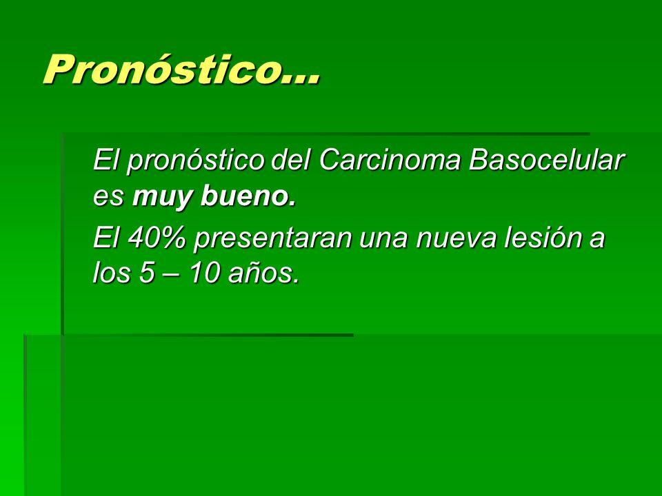 Pronóstico… El pronóstico del Carcinoma Basocelular es muy bueno. El 40% presentaran una nueva lesión a los 5 – 10 años.