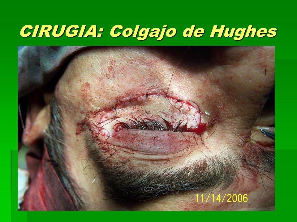 CIRUGIA: Colgajo de Hughes