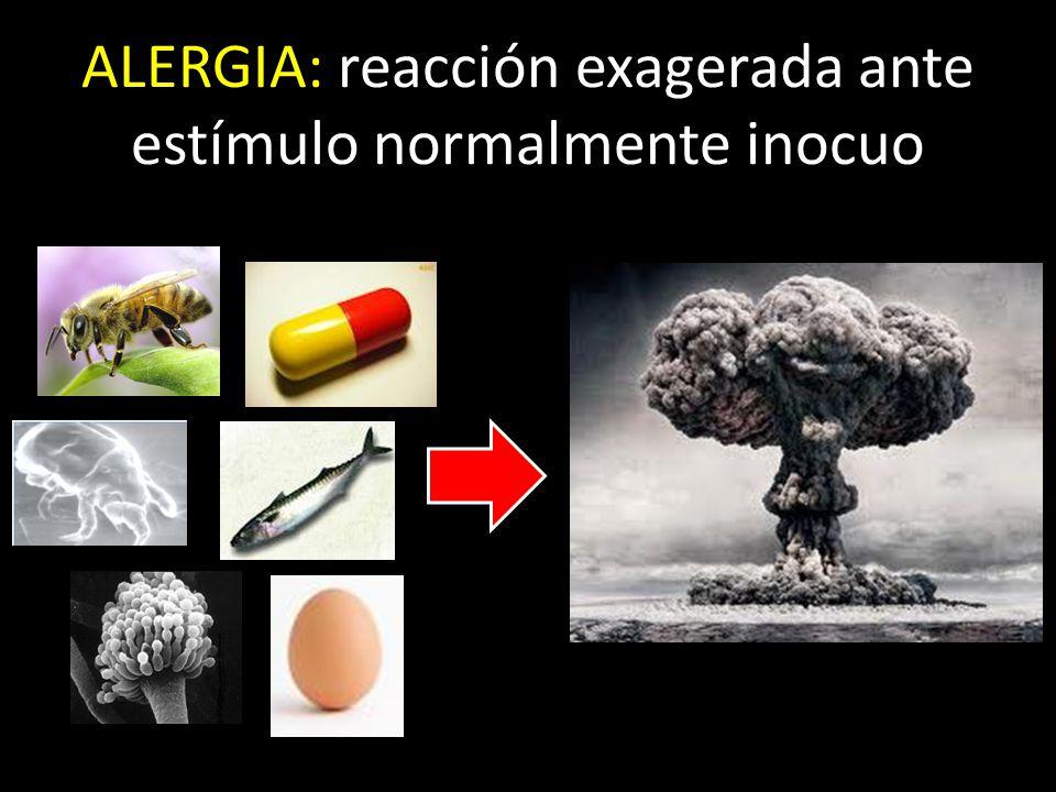 ALERGIA: reacción exagerada ante estímulo normalmente inocuo
