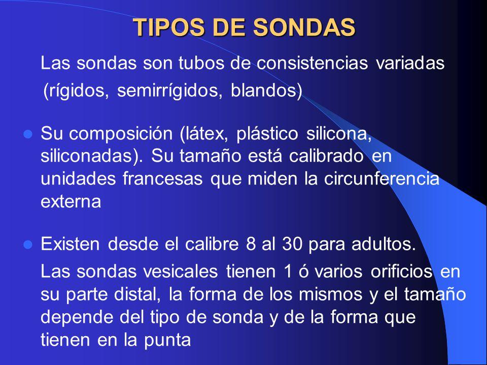 IRRIGACIÓN URETRAL: Equipo Jeringa de 50 o 60 cc.tipo Toomey Solución fisiológica o agua estéril.