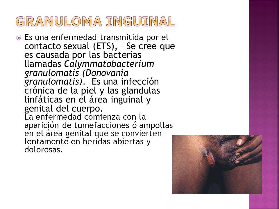  Es una enfermedad transmitida por el contacto sexual (ETS), Se cree que es causada por las bacterias llamadas Calymmatobacterium granulomatis (Donov