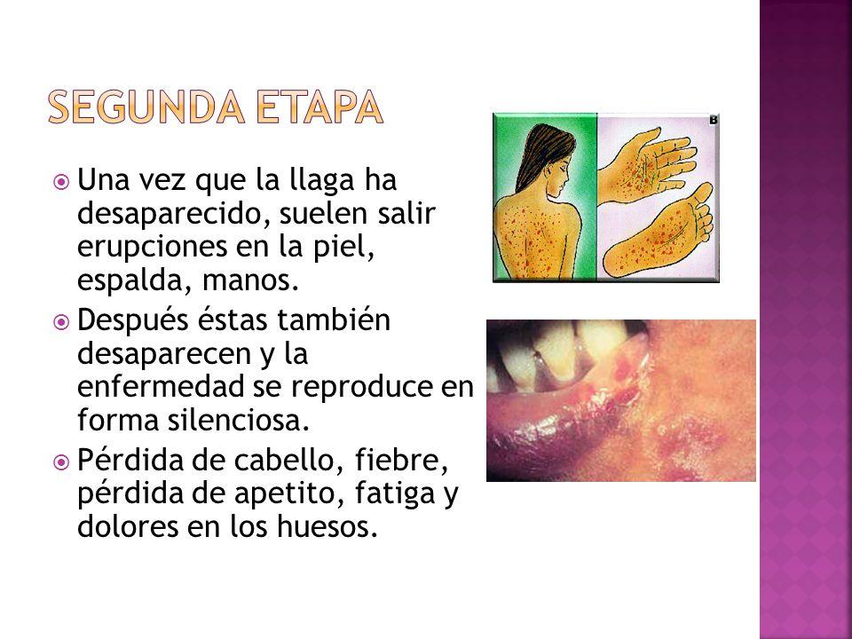  Una vez que la llaga ha desaparecido, suelen salir erupciones en la piel, espalda, manos.  Después éstas también desaparecen y la enfermedad se rep