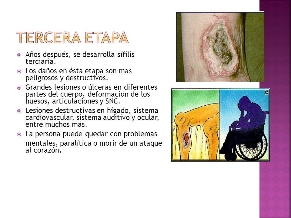  Años después, se desarrolla sífilis terciaria.  Los daños en ésta etapa son mas peligrosos y destructivos.  Grandes lesiones o úlceras en diferent