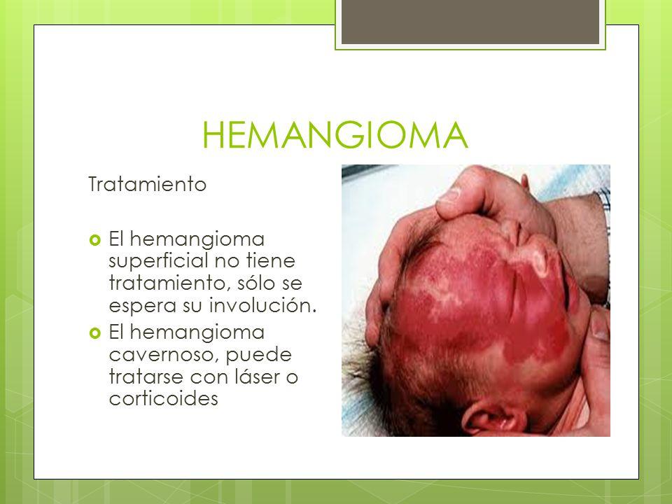 HEMANGIOMA Tratamiento  El hemangioma superficial no tiene tratamiento, sólo se espera su involución.  El hemangioma cavernoso, puede tratarse con l