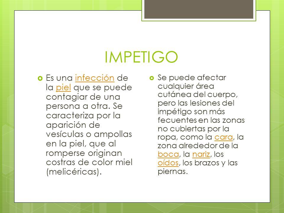 IMPETIGO  Es una infección de la piel que se puede contagiar de una persona a otra. Se caracteriza por la aparición de vesículas o ampollas en la pie