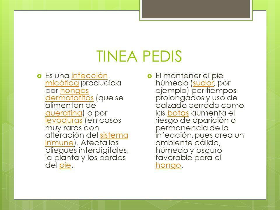 TINEA PEDIS  Es una infección micótica producida por hongos dermatofitos (que se alimentan de queratina) o por levaduras (en casos muy raros con alteración del sistema inmune).