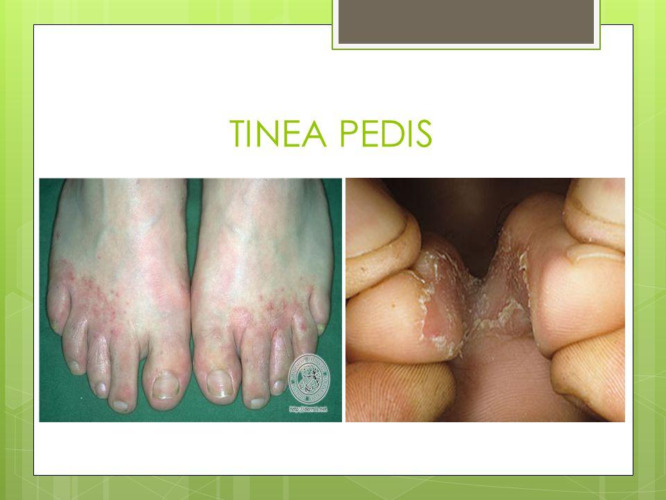 SINTOMAS: El pie de atleta causa enrojecimiento y picor constante.