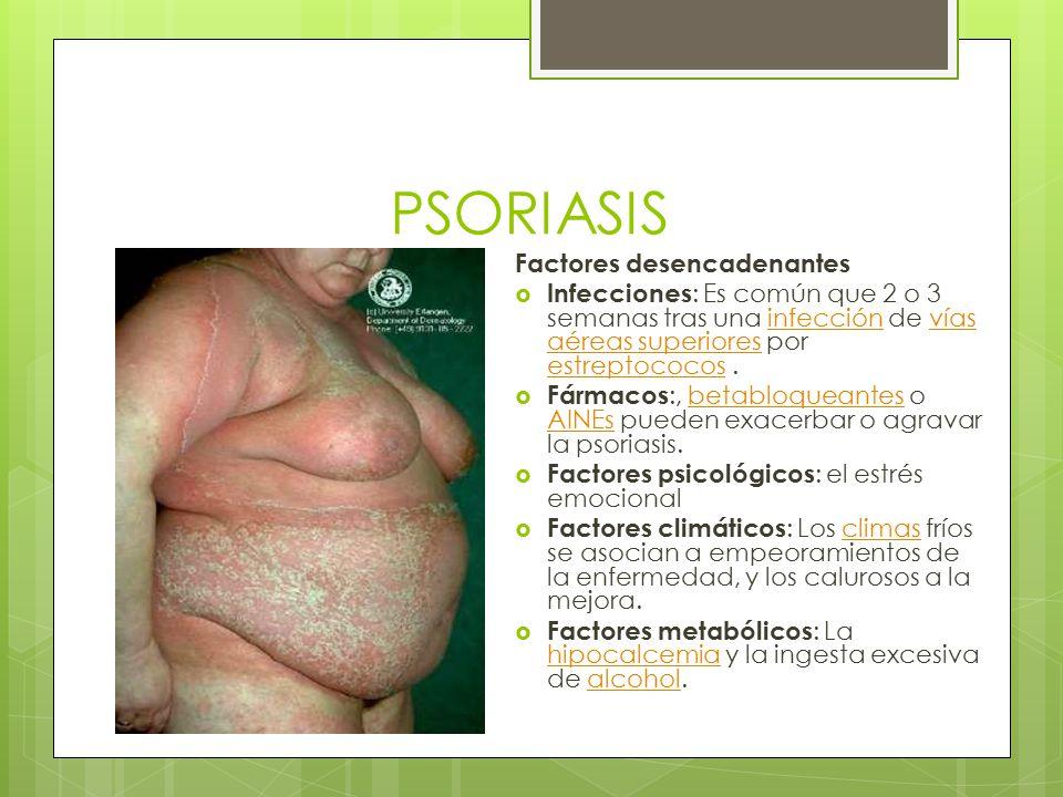 PSORIASIS Factores desencadenantes  Infecciones : Es común que 2 o 3 semanas tras una infección de vías aéreas superiores por estreptococos.infección