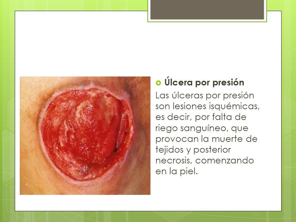 Estadíos de las úlceras por presión  ESTADÍO I Alteración observable en la piel íntegra, relacionada con la presión, que se manifiesta por un eritema cutáneo que no palidece al presionar; en pieles oscuras, puede presentar tonos rojos, azules o morados.