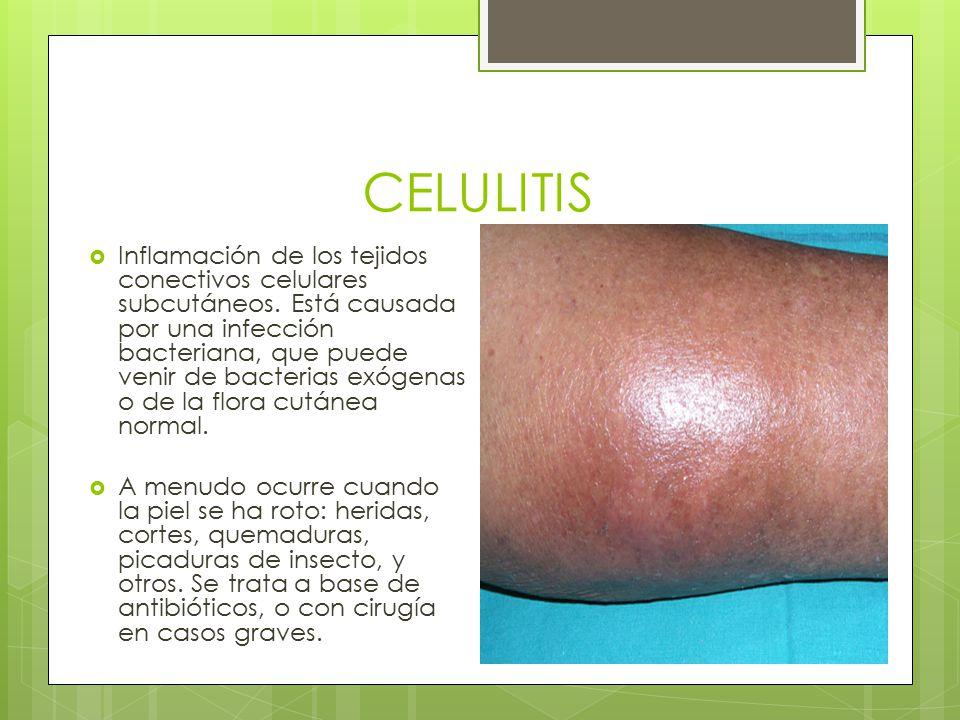CELULITIS  Inflamación de los tejidos conectivos celulares subcutáneos. Está causada por una infección bacteriana, que puede venir de bacterias exóge