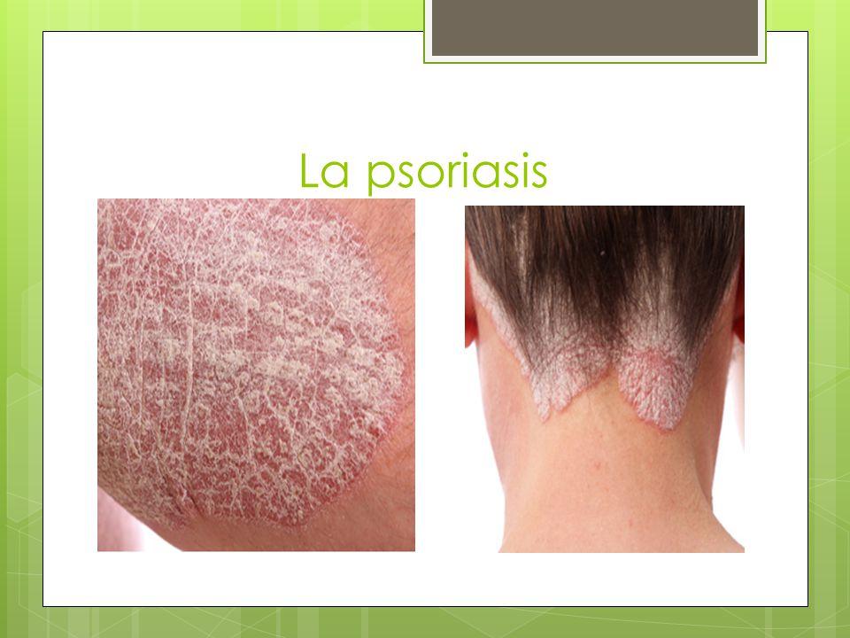 La psoriasis