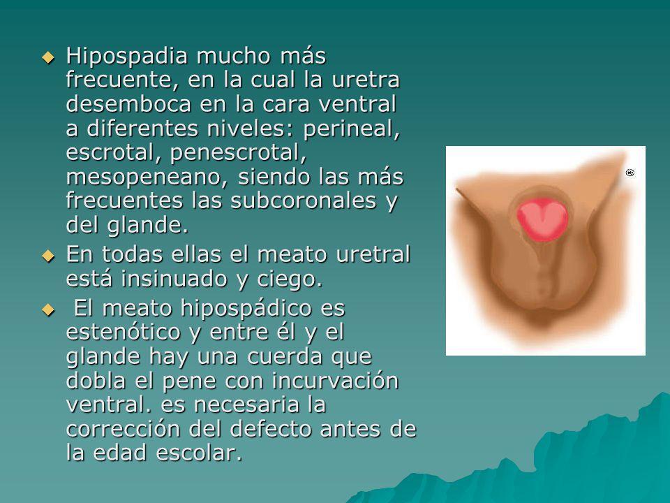 La hipospadia no corregida puede ser causa de infertilidad.