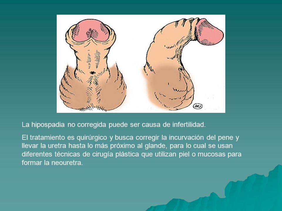La hipospadia no corregida puede ser causa de infertilidad. El tratamiento es quirúrgico y busca corregir la incurvación del pene y llevar la uretra h