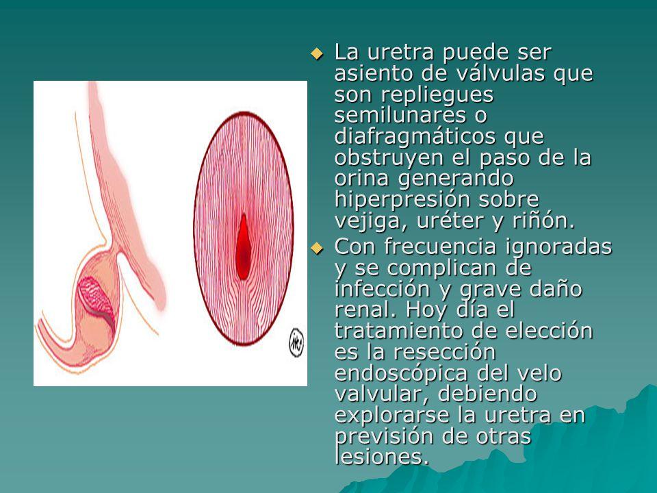  La uretra puede ser asiento de válvulas que son repliegues semilunares o diafragmáticos que obstruyen el paso de la orina generando hiperpresión sob