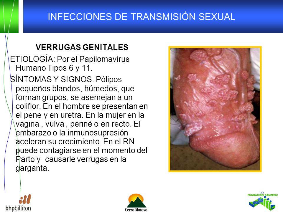 INFECCIONES DE TRANSMISIÓN SEXUAL VERRUGAS GENITALES ETIOLOGÍA: Por el Papilomavirus Humano Tipos 6 y 11.