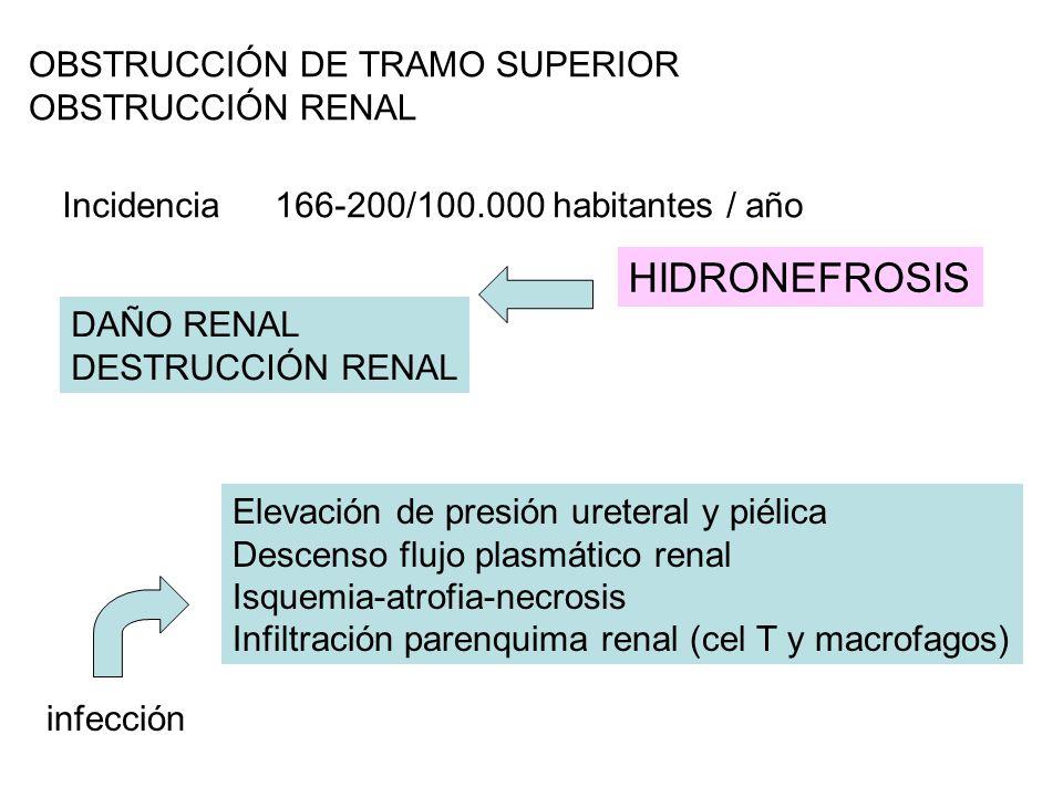 OBSTRUCCIÓN DE TRAMO SUPERIOR OBSTRUCCIÓN RENAL Incidencia166-200/100.000 habitantes / año DAÑO RENAL DESTRUCCIÓN RENAL Elevación de presión ureteral y piélica Descenso flujo plasmático renal Isquemia-atrofia-necrosis Infiltración parenquima renal (cel T y macrofagos) infección HIDRONEFROSIS