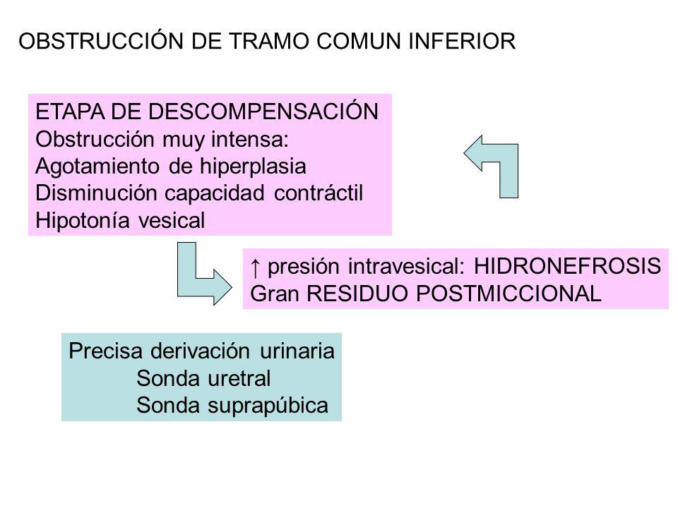 OBSTRUCCIÓN DE TRAMO COMUN INFERIOR ↑ presión intravesical: HIDRONEFROSIS Gran RESIDUO POSTMICCIONAL Precisa derivación urinaria Sonda uretral Sonda suprapúbica ETAPA DE DESCOMPENSACIÓN Obstrucción muy intensa: Agotamiento de hiperplasia Disminución capacidad contráctil Hipotonía vesical