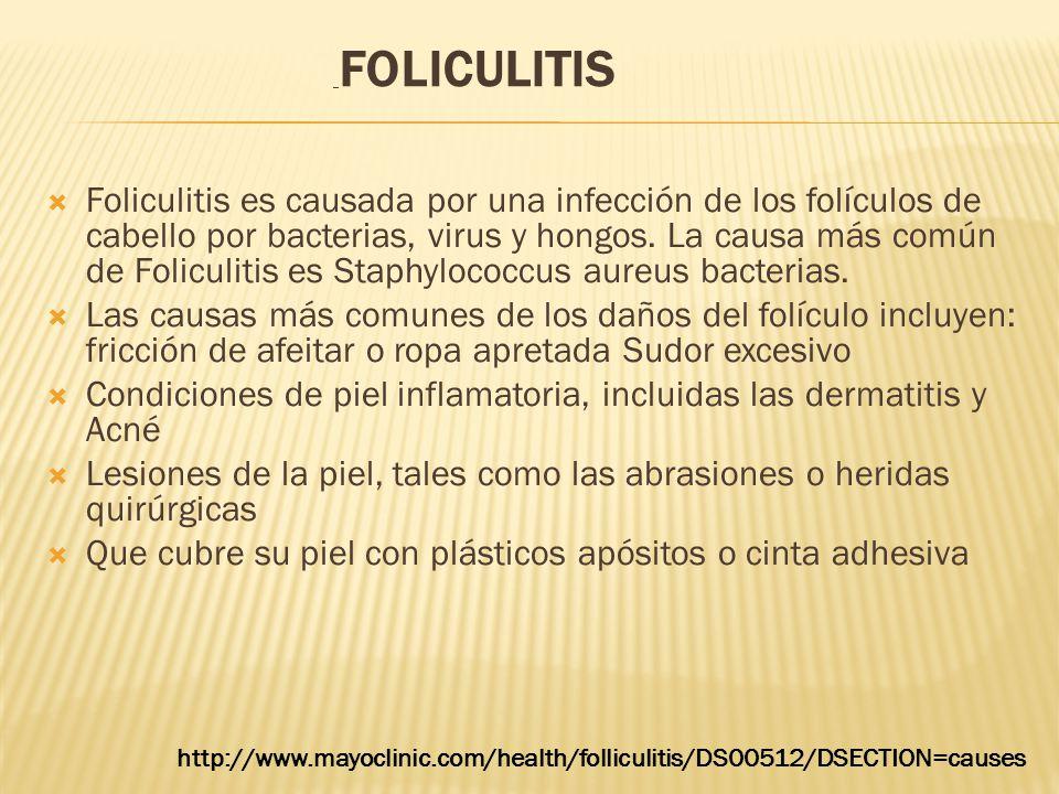  Foliculitis es causada por una infección de los folículos de cabello por bacterias, virus y hongos. La causa más común de Foliculitis es Staphylococ