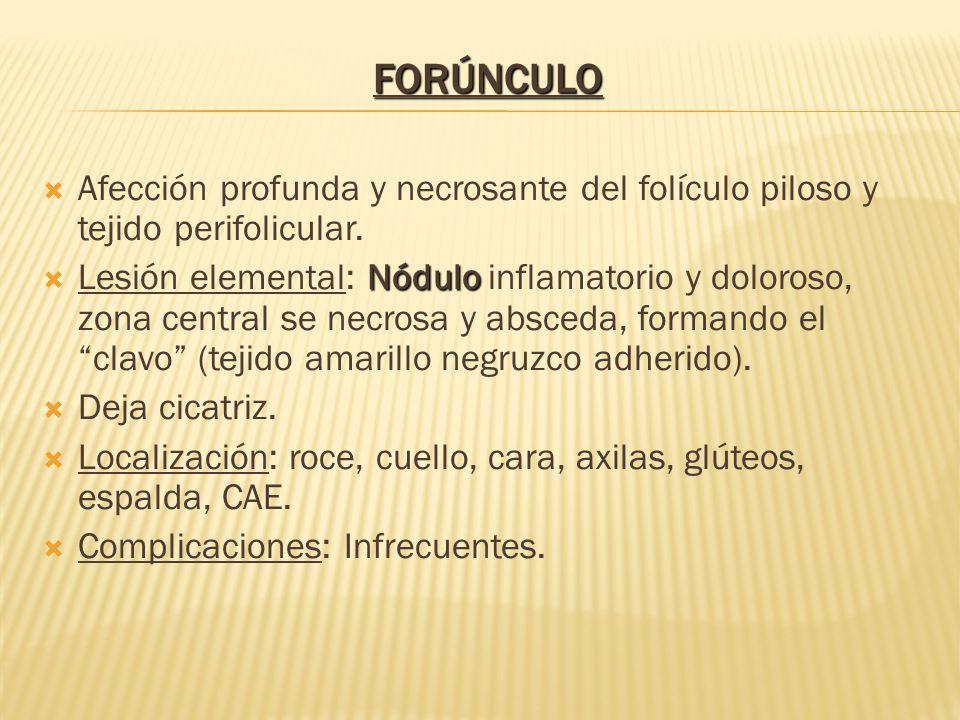 Afección profunda y necrosante del folículo piloso y tejido perifolicular. Nódulo  Lesión elemental: Nódulo inflamatorio y doloroso, zona central s