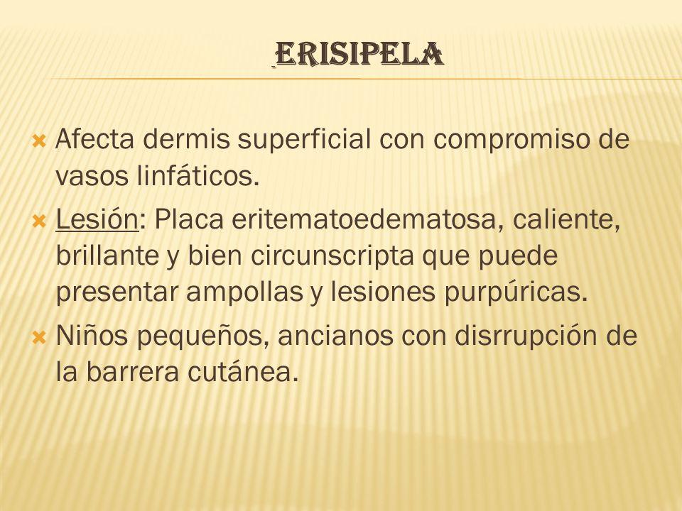 ERISIPELA  Afecta dermis superficial con compromiso de vasos linfáticos.  Lesión: Placa eritematoedematosa, caliente, brillante y bien circunscripta