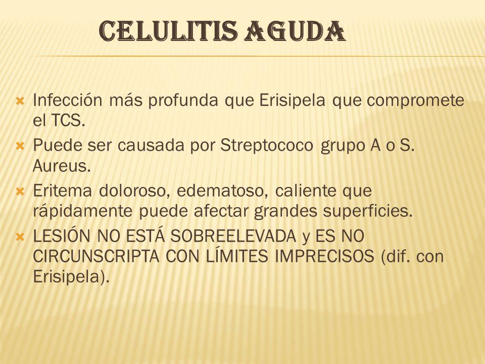 CELULITIS AGUDA  Infección más profunda que Erisipela que compromete el TCS.  Puede ser causada por Streptococo grupo A o S. Aureus.  Eritema dolor
