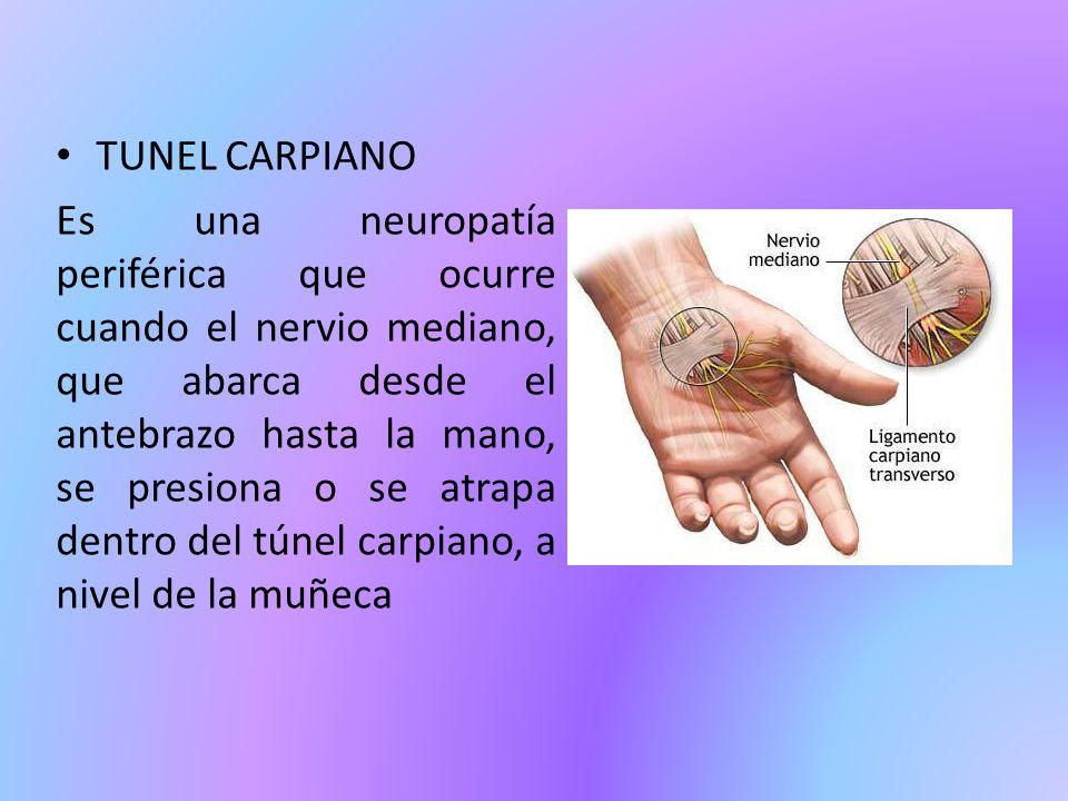 TUNEL CARPIANO Es una neuropatía periférica que ocurre cuando el nervio mediano, que abarca desde el antebrazo hasta la mano, se presiona o se atrapa