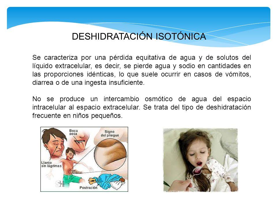 DESHIDRATACIÓN HIPERTÓNICA.