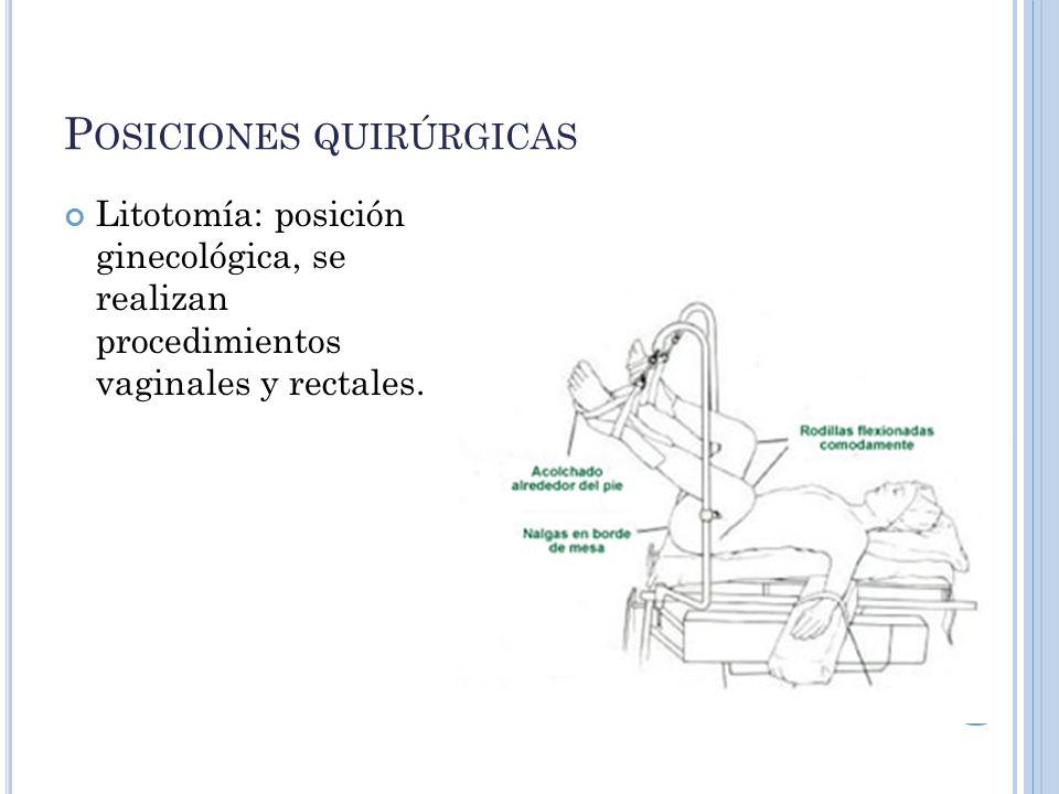 P OSICIONES QUIRÚRGICAS Litotomía: posición ginecológica, se realizan procedimientos vaginales y rectales.