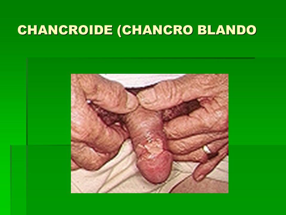 CHANCROIDE (CHANCRO BLANDO