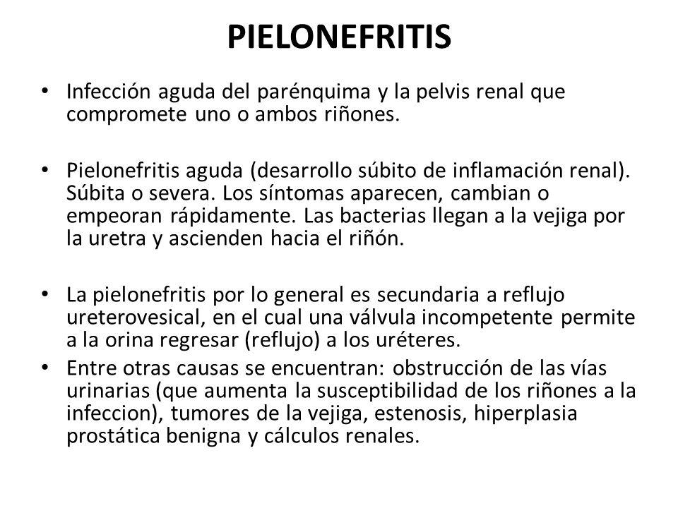 PIELONEFRITIS Infección aguda del parénquima y la pelvis renal que compromete uno o ambos riñones. Pielonefritis aguda (desarrollo súbito de inflamaci