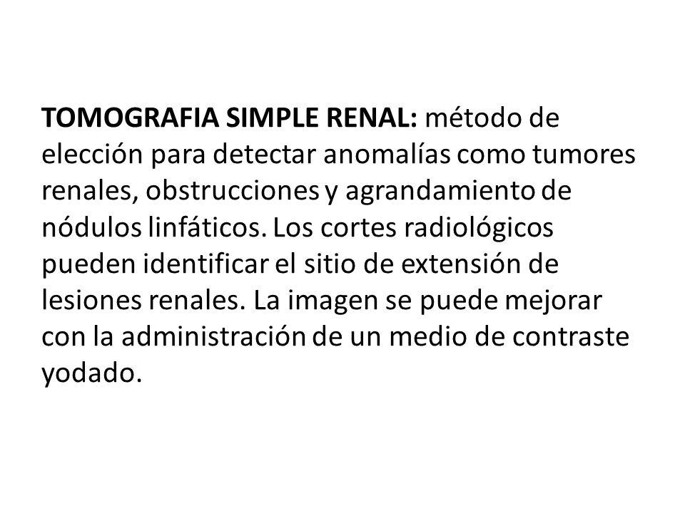 TOMOGRAFIA SIMPLE RENAL: método de elección para detectar anomalías como tumores renales, obstrucciones y agrandamiento de nódulos linfáticos. Los cor
