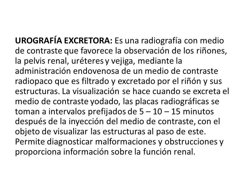 UROGRAFÍA EXCRETORA: Es una radiografía con medio de contraste que favorece la observación de los riñones, la pelvis renal, uréteres y vejiga, mediant